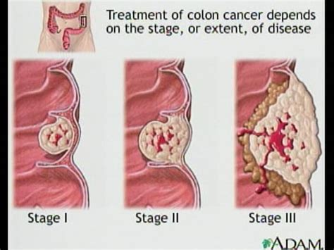 Colon Cancer And Blood In Stool by Colon Cancer Images