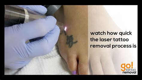 laser removal on a foot