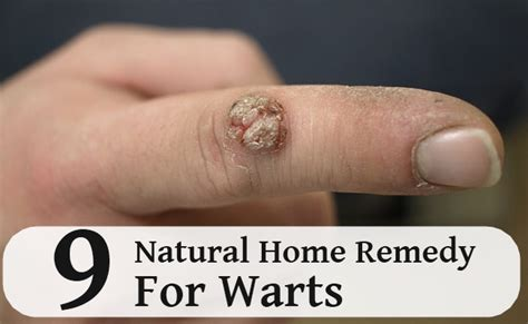 9 home remedy for warts search herbal home remedy