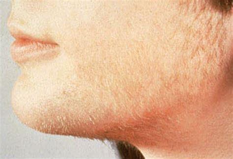 hirsutism pictures symptoms causes treatment