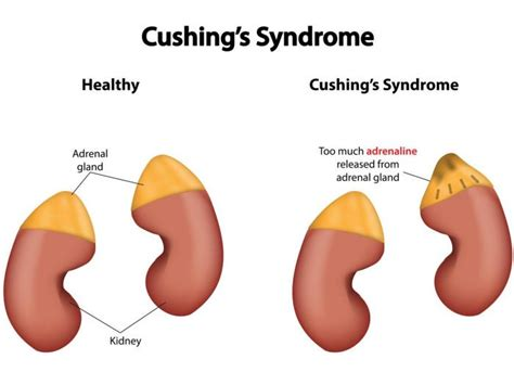 when to put a with cushing s disease home remedies for cushing s healthremediesforlife