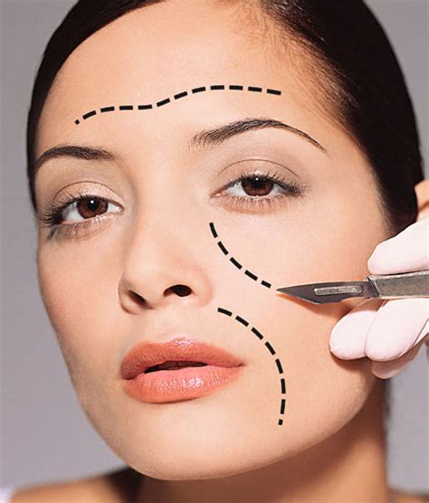 Plastic Surgery Plastic Surgery