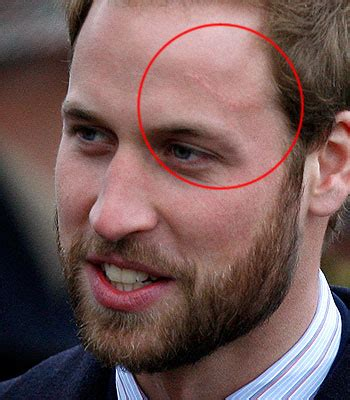 prince william antichrist anticristo principe gales 666 nwo illuminati the curious case of will and kate scars merovee