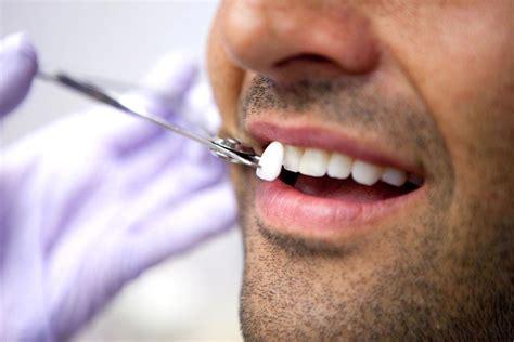 apparecchi dentali interni ortodonzia invisibile studio dentistico cicalese