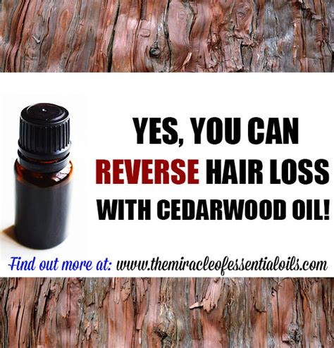 hairgrowth with cedarwood essential oil before and after pics cedarwood essential oil for hair loss how it works