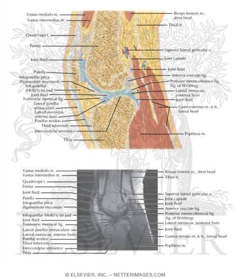 knee cross section illustrations in correlative imaging musculoskeletal