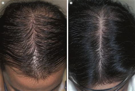 Female Pattern Hair Loss Dutasteride | dutasteride hair loss before and after hairsstyles co