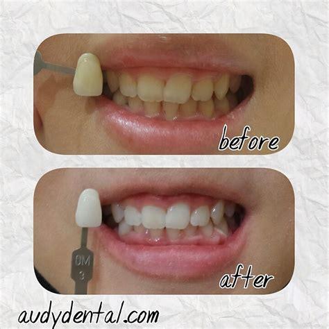 Pemutihan Gigi Bleaching bleaching pemutihan gigi audy dental audy dental