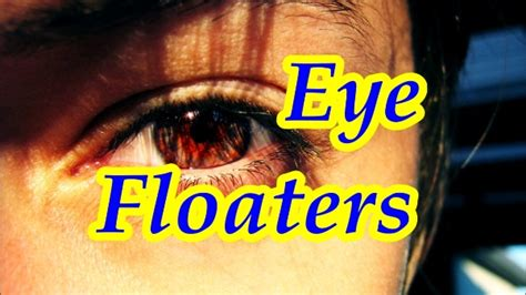flashing light in peripheral vision mayo clinic floaters in the eyes or spots in vision facts and signs