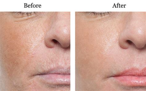 anti ageing micro needling