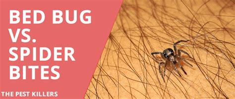 spider bites vs bed bug bites bed bug vs spider bite all you need to know thepestkillers