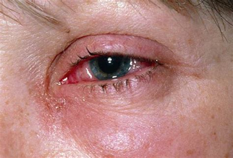 eyes sensitive to light and watery pink eye conjunctivitis symptoms causes treatments