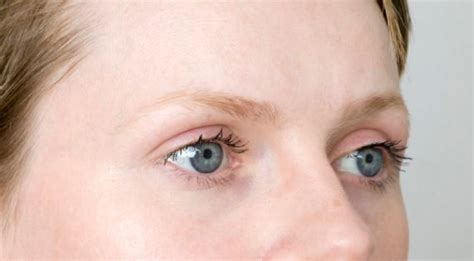 rough eyebrow hairs eyebrow hair loss causes and regrowth treatments knowfacts