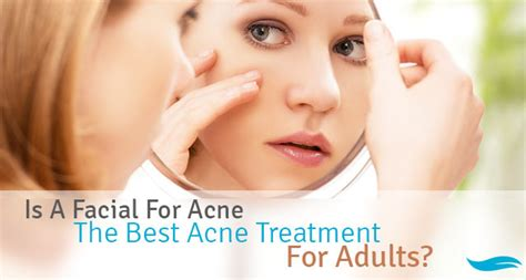 best acne treatment best treatment for acne rc auta info
