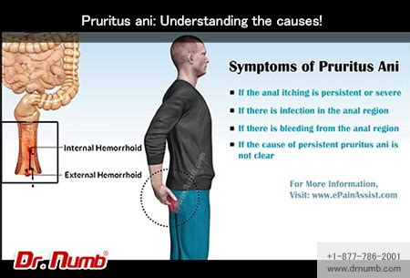 pruritus ani understanding the causes dr numb blog