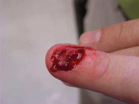 nail ripped nail torn nails ideas