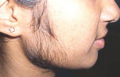 stop womens chin hair growth when females develop facial hair