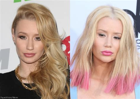 Jennifers Rep Confirms Nose by Before After Iggy Azalea S Nose See What She Said
