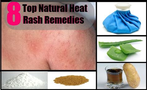 1000 images about heat rash on cure yeast
