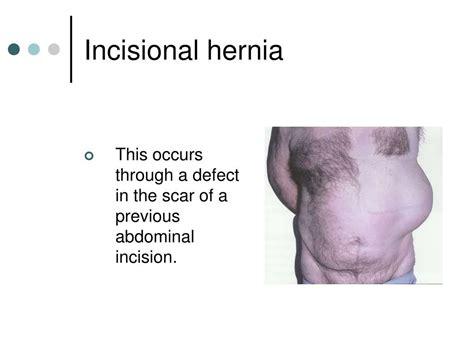 hernia c section scar symptoms ppt hernias powerpoint presentation id 679255