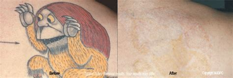 sandpaper tattoo removal tattoo removal treatment lumberton cosmetic surgery