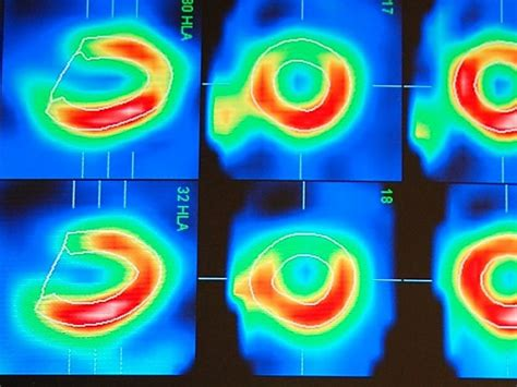 What Is Myocardial Perfusion Imaging
