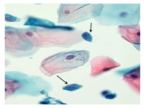Kaos Note Note 29 Bv oncocytologic investigation and interpretation