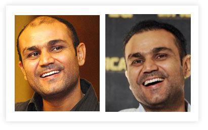 harsha bhogle scar after transplantation celebrity hair transplants in fashion for bald celebrities