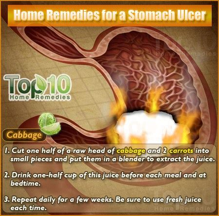 how to fix stomach pain home remedies for a stomach ulcer top 10 home remedies