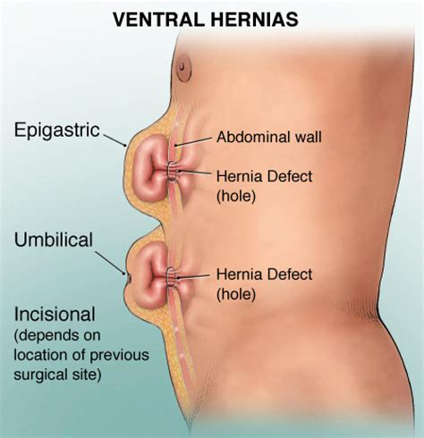 about your hernia inguinal hernia symptoms causes hernia treatment continental hospitals blog