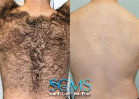 laser hair removal before and after los angeles san diego