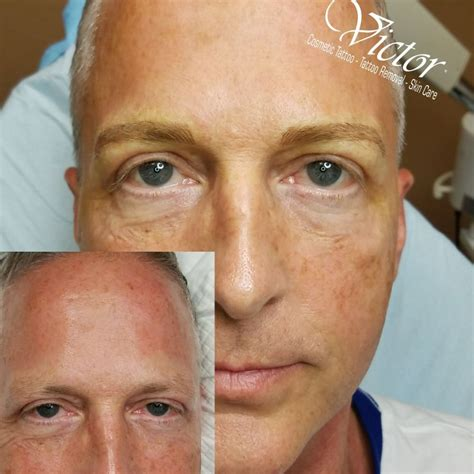 tattoo removal arlington tx permanent makeup removal by victor 12 photos