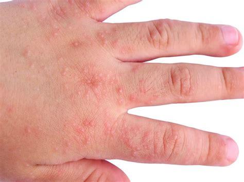 dermatite da alimenti dermatite atopica come curarla con prodotti naturali