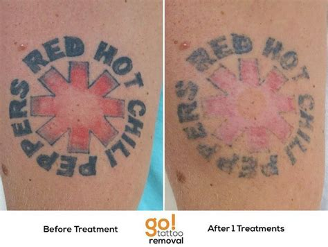 back tattoo removal 17 best images about removal in progress on