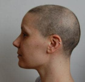 Hair Loss After Chemotherapy | image gallery hair loss after chemotherapy