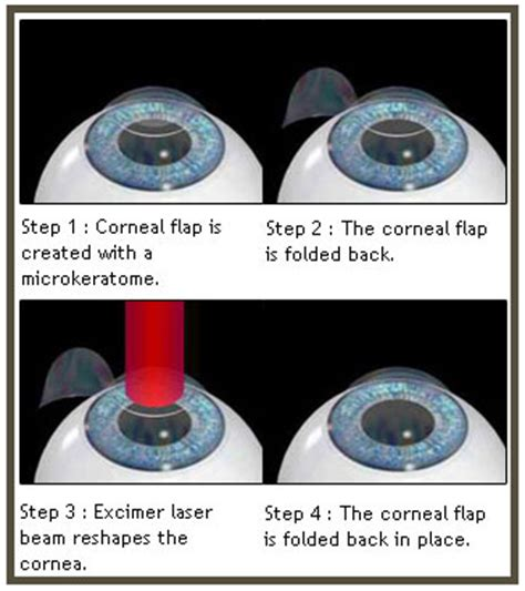 lasik surgery you considered permanent vision