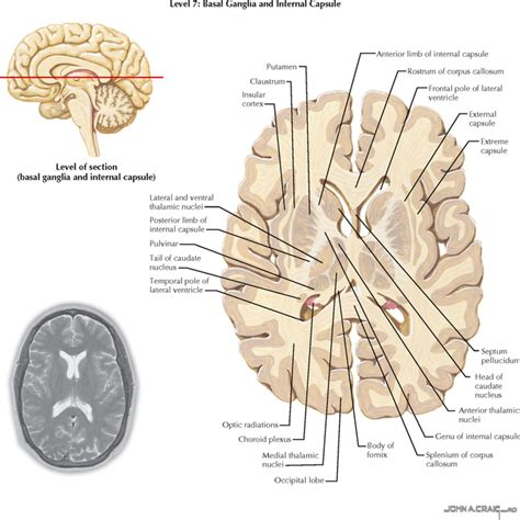 axial section of brain telencephalon neupsy key