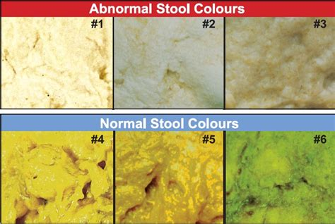 Is Light Colored Stool Normal by Normal Colours For Baby Sudbury Community Midwives