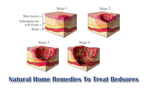 how to treat bed sores natural home remedies to treat bedsores quickly my