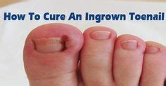 how to fix an ingrown hair 1000 images about ingrown toenails on pinterest