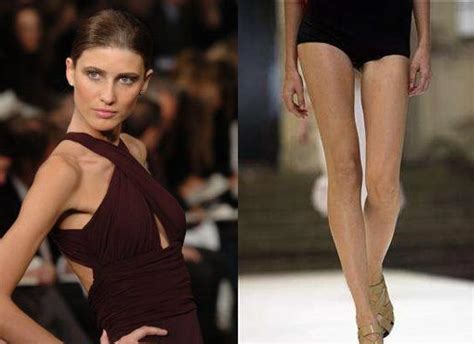 Model Update Americas Response To The Thin Model by Fashion Health In Real Get Along Spain