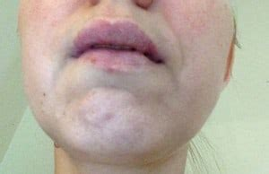1000 images about swollen lip on pinterest upper lip activated swollen upper lip causes and treatment wow remedies