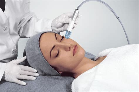 9 Skincare Treatments by Microdermabrasion Embellish You