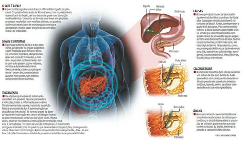 alimentazione per pancreatite pancreatite acuta e cronica sintomi cause e terapia