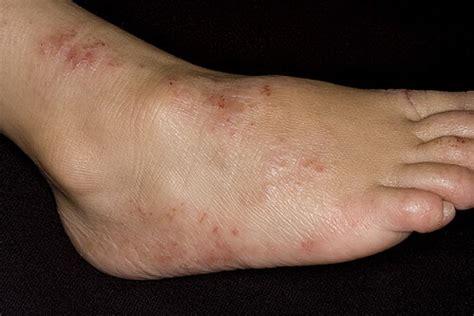 Фото дерматита.