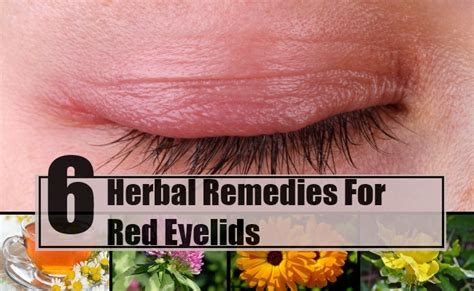 remedies for eyelids eyelids treatments home