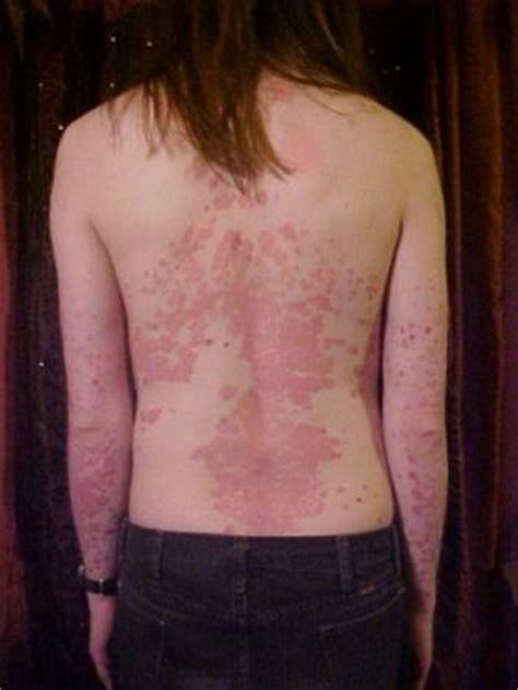 tattoo psoriasis pictures tattoos and psoriasis