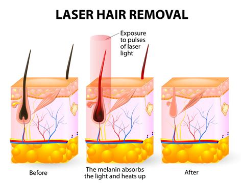 Liceko Depilatory Lasting Hair Removal Waxing For Mis Berkualitas laser hair removal buffalo ny laser hair removal williamsville ny