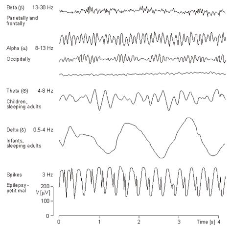 eeg pattern recognition quiz true impact consumer neuroscience and neuromarketing