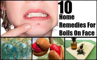 11 boils on face home remedies natural treatments amp cure